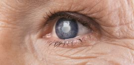 Indigenous Australians Face Lack of Access to Cataract Surgery