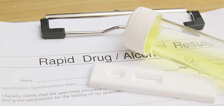 Drug testing form with urine sample